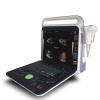 Portable full digital color doppler ultrasonic system