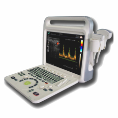Portable color doppler diagnostic system