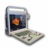 3D Color Doppler Ultrasonic Diagnosiitc System