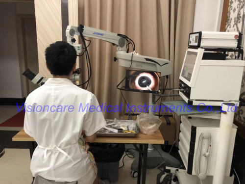 FDA Marked Ophthalmic Operating Microscope for Anterior Segment & Retinal Vitreous Surgery with BIOM