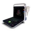 E80 high end color doppler ultrasound diagnostic system