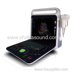 E80 high end color doppler ultrasound diagnostic system