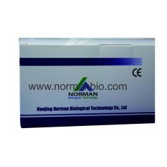 Hepatitis C Virus Antibody(Anti-HCV)Testing Kit