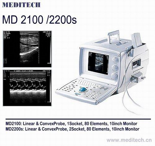 B/W diagnostic Ultrasound Scanner with software