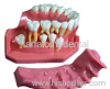silicon rubber gingiva