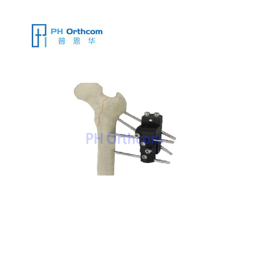 Pertrochanteric Fixator for Femoral Fracture OrthoFix Type External Fixators Trauma Orthopaedic