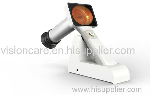 FDA Marked Ophthalmic Non Mydriatic Digital Handheld Fundus Camera