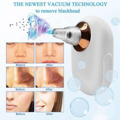 Black Head Remover / blackhead adsorber